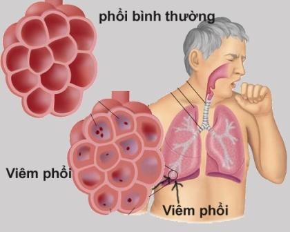 Sử dụng bếp than tổ ong là nguyên nhân gây nên các bênh về phổi (Ảnh minh họa)